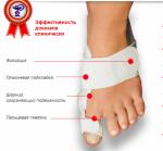 """Профессиональное """"лечение косточки на ноге"""""""